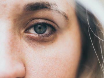 5 Tips Samarkan Kantong Mata, Mudah & Alami! Wajib Dicoba Guys 10