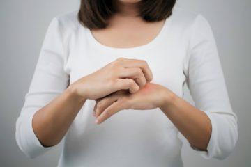 Cermati 7 Gejala Alergi yang Mungkin Tidak Kamu Sadari 2