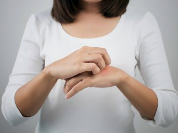Cermati 7 Gejala Alergi yang Mungkin Tidak Kamu Sadari 13