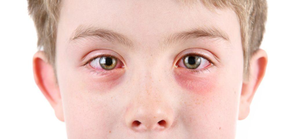Cermati 7 Gejala Alergi yang Mungkin Tidak Kamu Sadari 5
