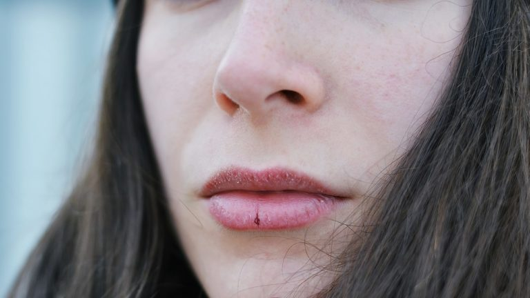 6 Tips Atasi Bibir Kering Saat Berpuasa 1