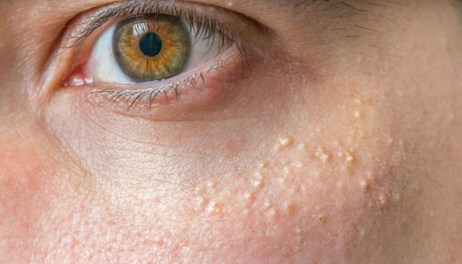 5 Penyebab Milia Bisa Muncul di Wajah 3