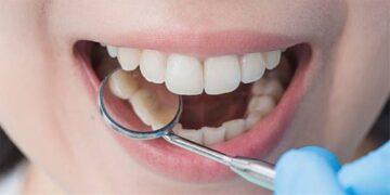 5 Cara Alami Mengatasi Masalah Plak Gigi 1