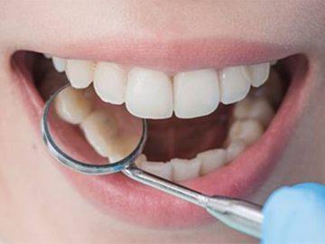 5 Cara Alami Mengatasi Masalah Plak Gigi 20