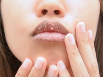 5 Kebiasaan Sepele Yang Bisa Bikin Bibir Menjadi Kusam dan Hitam 10