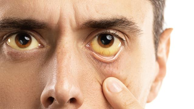 5 Jenis Penyakit Yang Mudah Menular Kepada Manusia 4