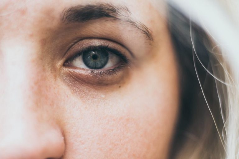 Cara Menghilangkan Kantung Mata 1