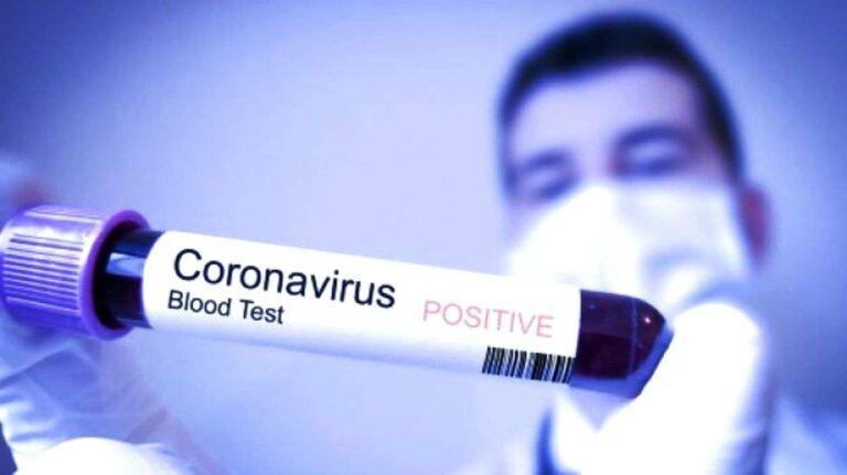 5 Cara Pencegahan Virus Corona, Lakukan Ini Agar Kamu Tidak Tertular ya 1