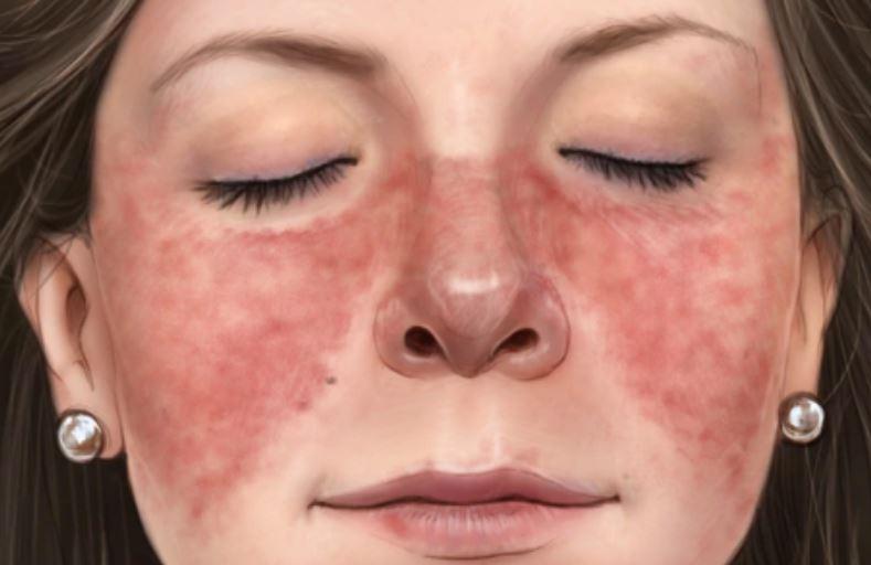 5 Penyakit Rambut Rontok Yang Ditandai Dengan Gejala Berikut Ini, Jangan Sepelekan ya 4