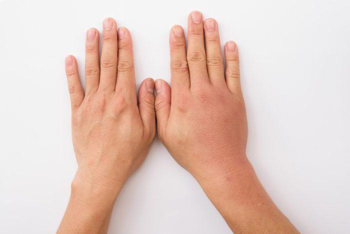 5 Masalah Ginjal Beserta Tandanya Yang Harus Kamu Ketahui 5