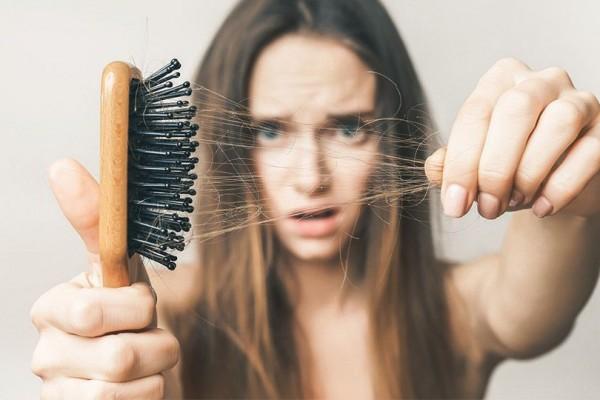 5 Penyakit Rambut Rontok Yang Ditandai Dengan Gejala Berikut Ini, Jangan Sepelekan ya 5