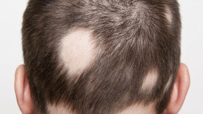5 Penyakit Rambut Rontok Yang Ditandai Dengan Gejala Berikut Ini, Jangan Sepelekan ya 7