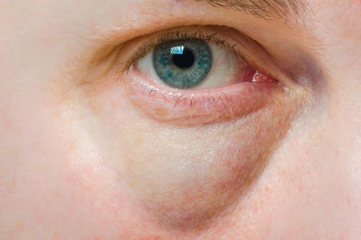 5 Lingkaran Mata Hitam Yang Perlu Kamu Ketahui, Penyebabnya Tidak Hanya Kurang Tidur Loh 3