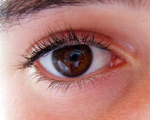 5 Lingkaran Mata Hitam Yang Perlu Kamu Ketahui, Penyebabnya Tidak Hanya Kurang Tidur Loh 4