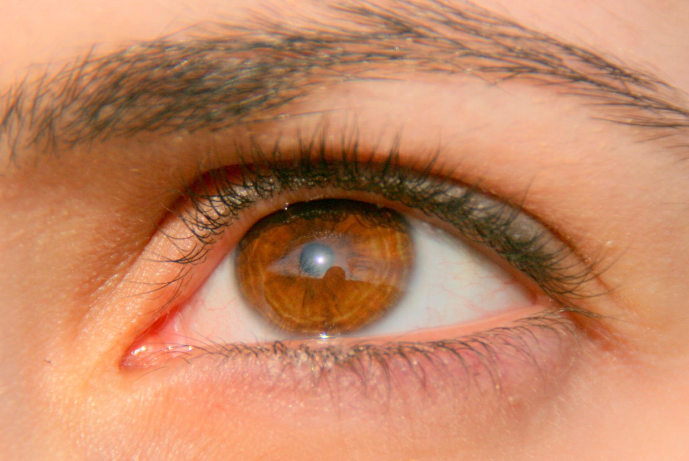 5 Lingkaran Mata Hitam Yang Perlu Kamu Ketahui, Penyebabnya Tidak Hanya Kurang Tidur Loh 5