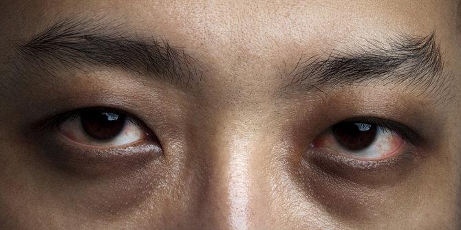 5 Lingkaran Mata Hitam Yang Perlu Kamu Ketahui, Penyebabnya Tidak Hanya Kurang Tidur Loh 6