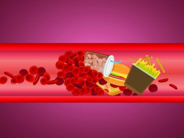 Mengetahui Penyebab dan Pengobatan Penyakit Kolesterol Tinggi 7