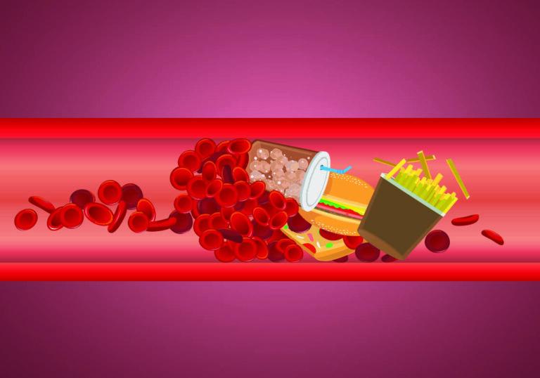 Mengetahui Penyebab dan Pengobatan Penyakit Kolesterol Tinggi 1