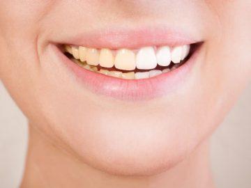 5 Kebiasaan Yang Membuat Gigi Menjadi Kuning, Dikurangin ya 13