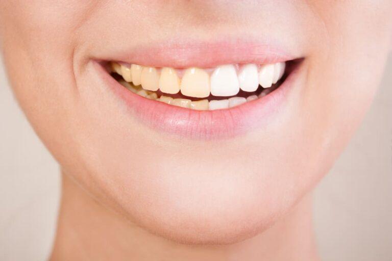 5 Kebiasaan Yang Membuat Gigi Menjadi Kuning, Dikurangin ya 1