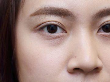 5 Lingkaran Mata Hitam Yang Perlu Kamu Ketahui, Penyebabnya Tidak Hanya Kurang Tidur Loh 10