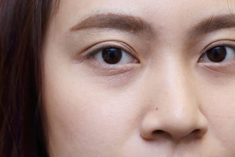 5 Lingkaran Mata Hitam Yang Perlu Kamu Ketahui, Penyebabnya Tidak Hanya Kurang Tidur Loh 1