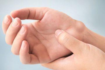 5 Bahan Alami yang Efektif untuk Mengatasi Kista Ganglion 13