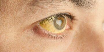 Manfaat Tanaman Herbal & Penyakit Kuning 9