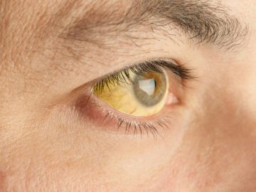 Manfaat Tanaman Herbal & Penyakit Kuning 8