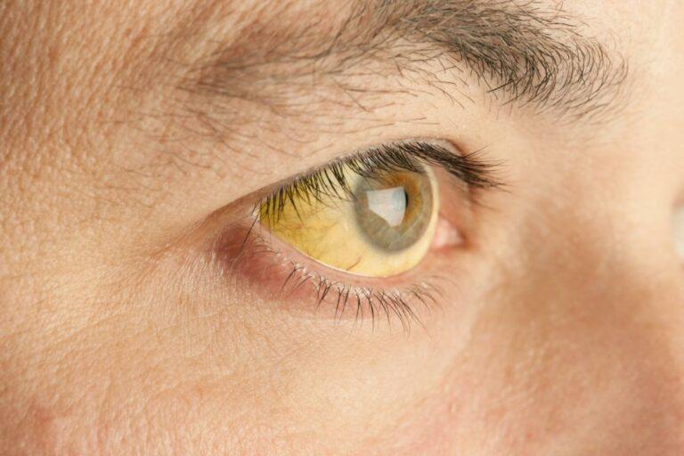 Manfaat Tanaman Herbal & Penyakit Kuning 1