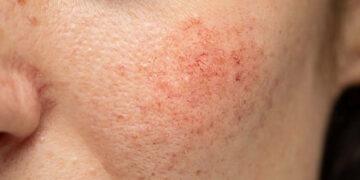 Tips MUDAH dan PASTI merawat kulit SENSITIF!!! 15