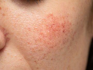 Tips MUDAH dan PASTI merawat kulit SENSITIF!!! 6