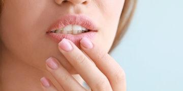 9 Tips Mencegah Bibir Kering dan Pecah-pecah Saat Puasa, Pernah Mengalami? 18