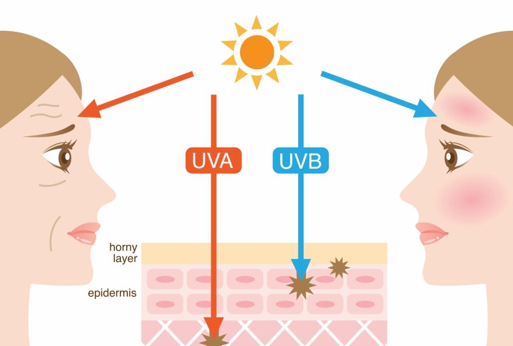 Mengenal 3 Jenis Sinar UV dan Dampaknya Bagi Kesehatan 4