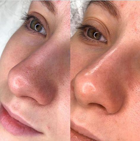 Perbandingan wajah dengan jenis kulit kering (kiri) dan berminyak atau kombinasi (kanan)