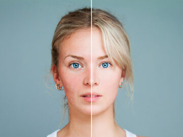 5 Kandungan Skincare yang Ampuh untuk Bekas Jerawat 7